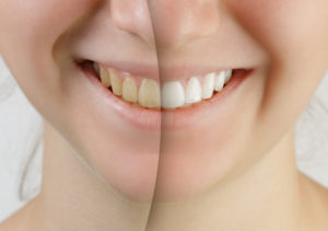 Improve your teeth with cosmetic whitening